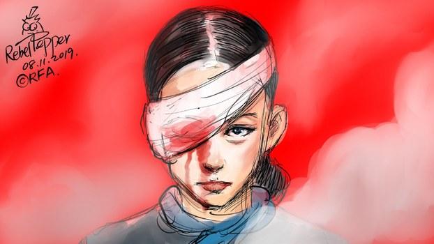 变态辣椒:香港爆眼女孩重回公众面前。(变态辣椒)