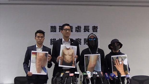 2019年8月20日,民主党议员林卓廷(左二)与事主家属在记者会上,展示事主身体受伤的照片。(林卓廷Facebook视频截图)