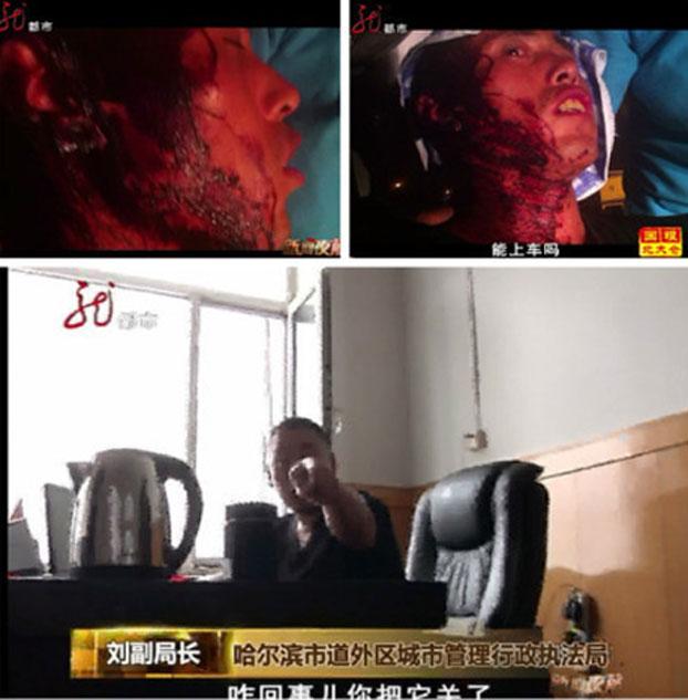 7月18日,在哈尔滨街头卖西瓜的商贩吴伟遭到了城管执法人员的一顿痛打,头破血流。(网络图片)