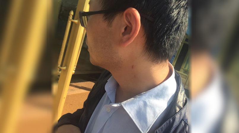 胡耀辉展示被广州辅警殴打的表面痕迹。(胡耀辉提供,拍摄日期不详)