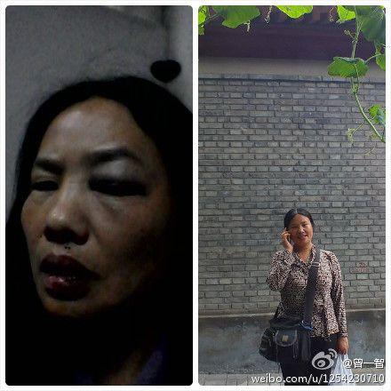 图片:被打的贾灵敏被打后用手机拍摄发给网友后,网友@曾一智上传微博。(博讯)