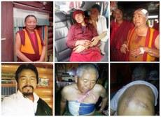 图片:被开枪及殴打致伤的道孚藏人:左起(上)纠察师嘉措、尼姑卓玛普赤、僧人洛桑多吉;左起(下)环保人坚参、村民亚玛次仁(两图)。(受访人提供)